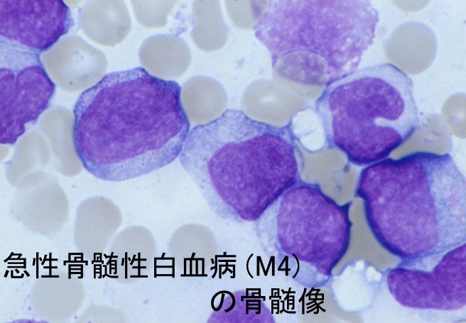 白血病原因: AML M4