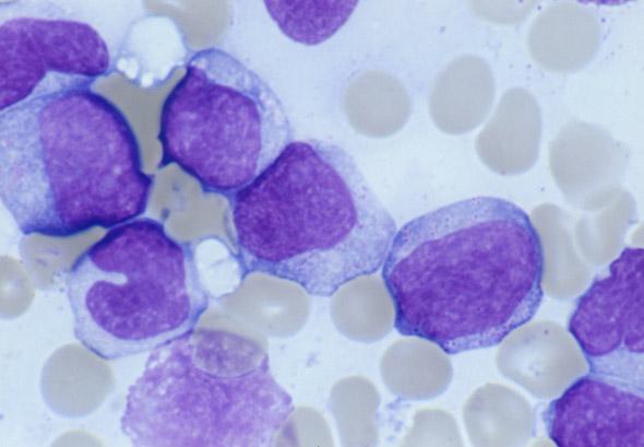 白血病 治療: がん治療最新情報